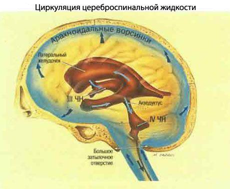 padidėjusi intrakranijinė hipertenzija)