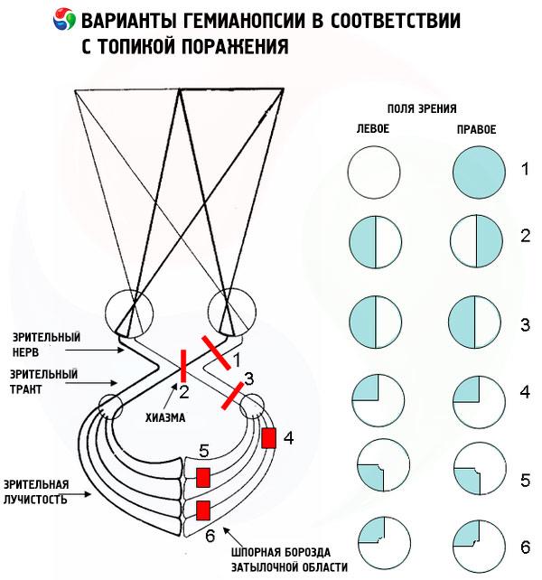 hipertenzija regos laukų praradimas)