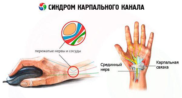 Autoimunines ligos artritas