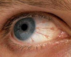 akį skauda hipertenzija)