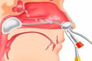 Polipai ir adenoidai gali turėti rimtų pasekmių