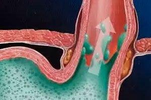 erozinis gastritas ir hipertenzija)