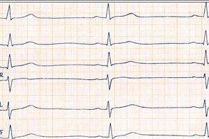 širdies bradikardija ir hipertenzija